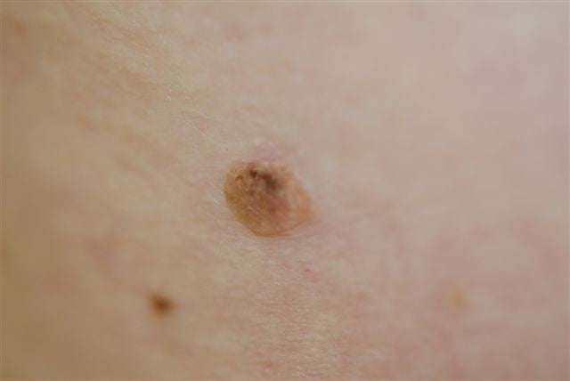 dark spot on skin seborrheic keratosis