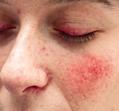 spider veins on face from rosacea picture