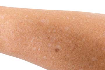 White spots on arms and legs: Ask Dr. Bailey