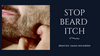 Beard Itch: Causes and Antidote