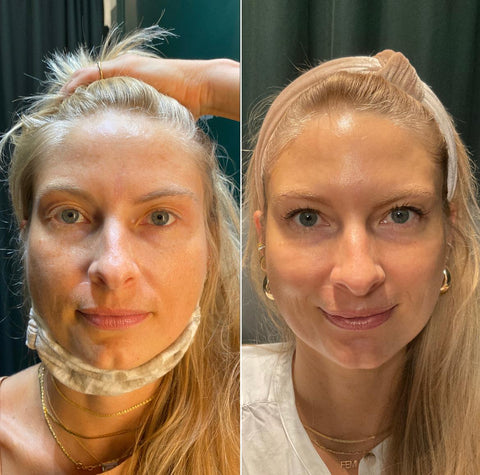 IPL Before & After