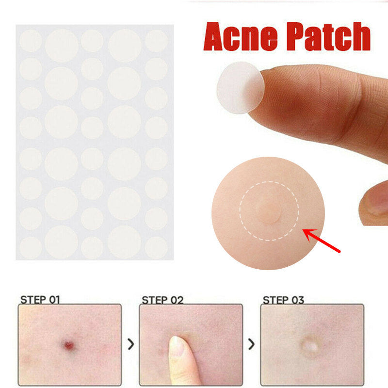 Skin tag & acne patch - i-Deals Store