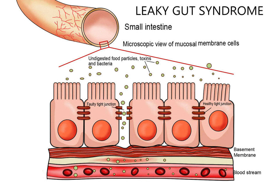 HEAL YOUR GUT - Leaky Gut Syndrome