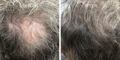 Nulastin-Scalp-Hair-Results-Before-After