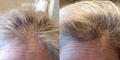 Before and After Results Using HAIR Vibrant Scalp Treatment with Keracyte® Elastin Complex