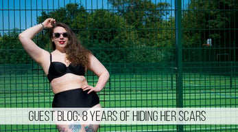 Guest Blog: 8 Years Of Hiding Her Scars Hannah Shows Off Her Beach Body