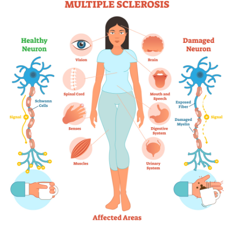 multiple sclerosis massages