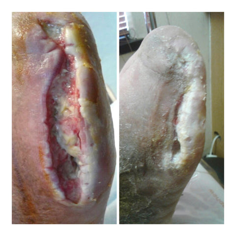 Diabetic toe amputation wound healing progress using Chronic Wound Repair