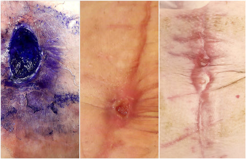 Surgical wound healing progress using Chronic Wound Repair