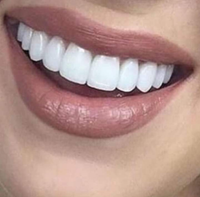 Belle dents