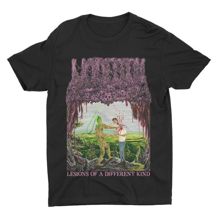 Undeath - Lesions Of A Different Kind t-shirt