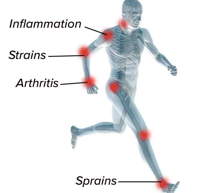Rendering of skeletal system with points of pain highlighted in red at joints