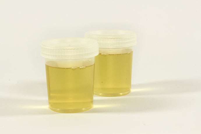Use and read out urine tests correctly