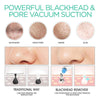 Electric Facial Blackhead Vacuum Remover