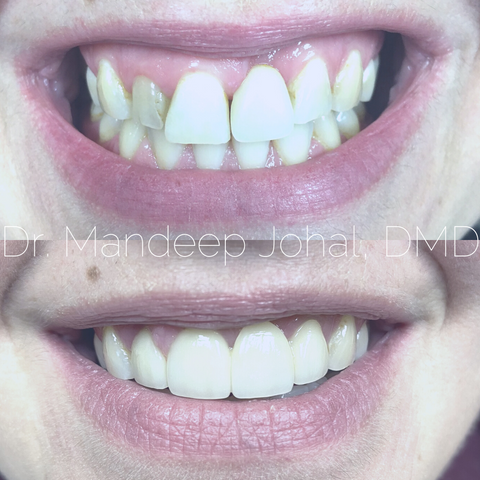 Guelph Smile Makeover Dentist Before and After