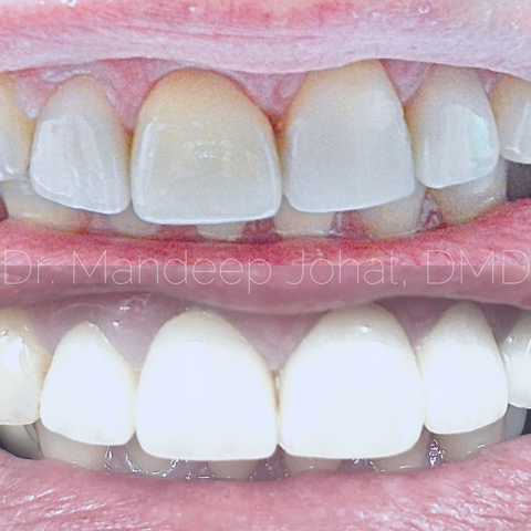 How To Fix Different Size Dental Crowns