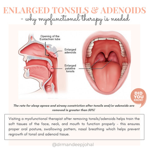 Tonsil Removal and Myofunctional Therapy