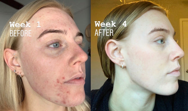 URJA Before + After Review: Using CBD Skincare for Acne Prone, Sensitive Skin
