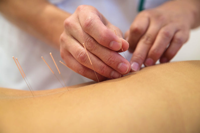 Which Diseases Can be Helped by Acupuncture?