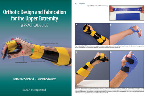 Read my new textbook, Orthotic Design and Fabrication for the Upper Extremity: A Practical Guide, co-written with my colleague, Dr. Katherine Schofield.