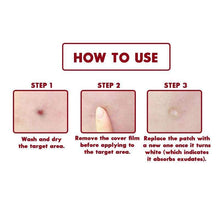 Load image into Gallery viewer, BloomVenus COSRX Acne Pimple Master Patch
