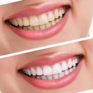 BloomVenus DazzlingSmile™ Teeth Whitening Dental Kit