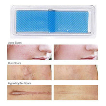 Load image into Gallery viewer, BloomVenus FLAWLESSYOU™ Stretch Mark Removal Sheet
