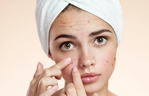 Can Turmeric and Honey Cure Acne?