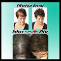 Hair Loss Building Fiber