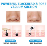 Exclusive Blackhead Remover Pro - HadyaTrends
