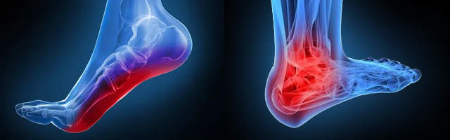 Low Arch and Heel Pain