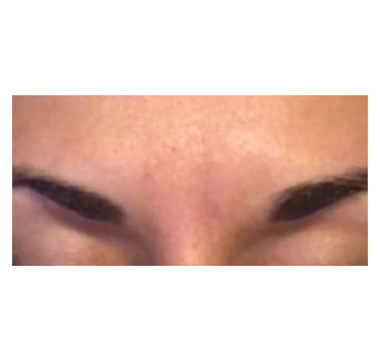 Refreshed brow area after treatment.