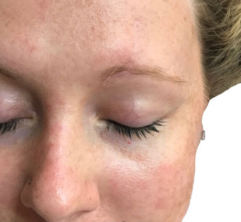 Facial scar nearly invisible after treatment.