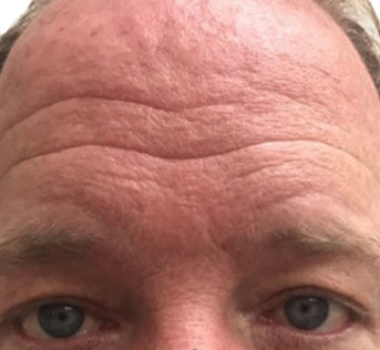 Deep forehead wrinkles on 50's male.