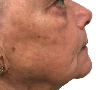 Smoother, fuller jawline after treatment.