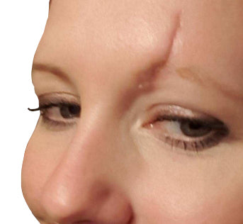 Deep facial scar, above left eye.