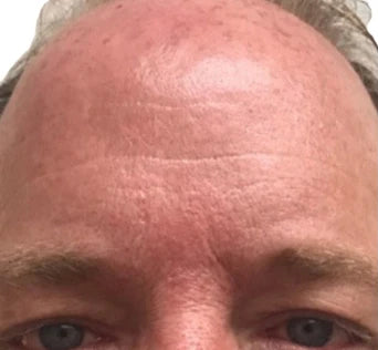 Brow and forehead wrinkle reduction after treatment.