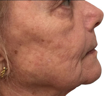 Sagging jaw area and wrinkles in 70's woman.