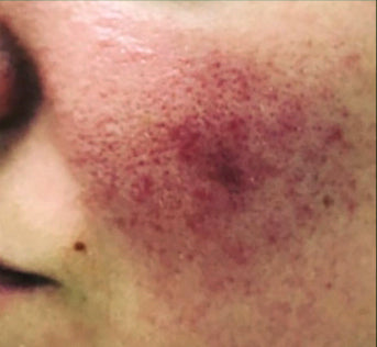 Rosacea flairup on cheek.