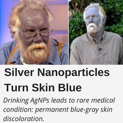 Drinking Silver Nanoparticles leads to rare medical condition: permanent blue-gray skin discoloration