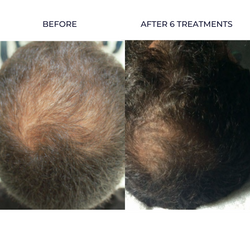 HAIR REGROWTH SKIN INFUSION