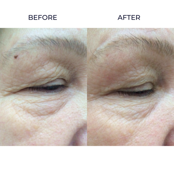 Eye Revive skin infusion before and after