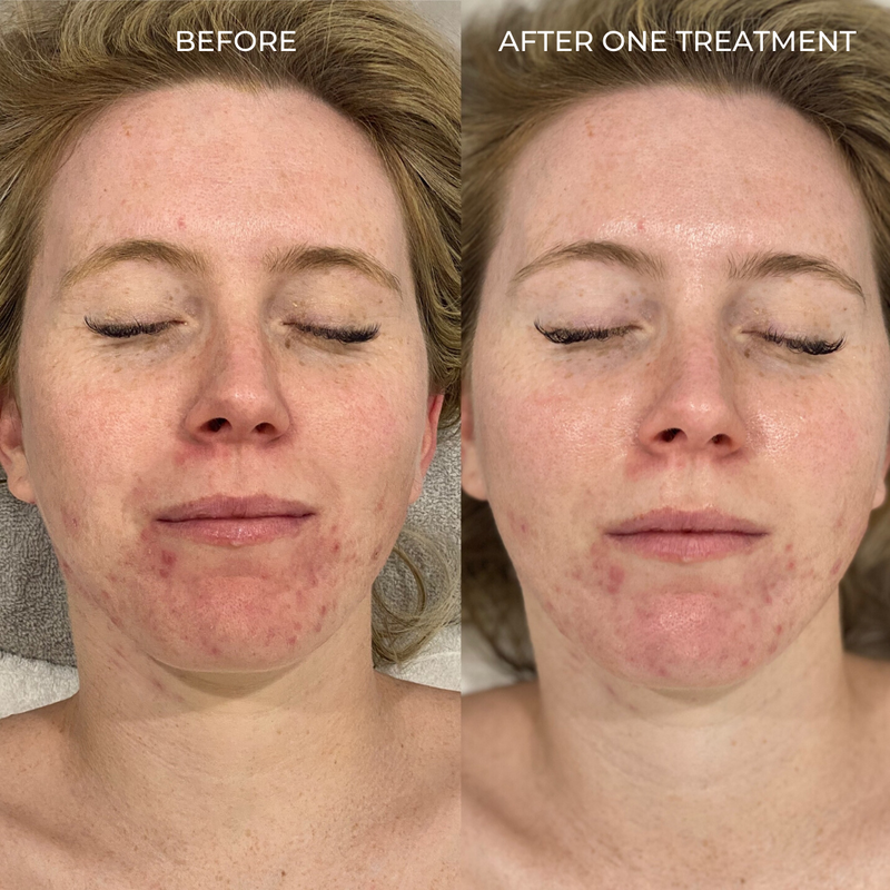 Before and After one acne treatment