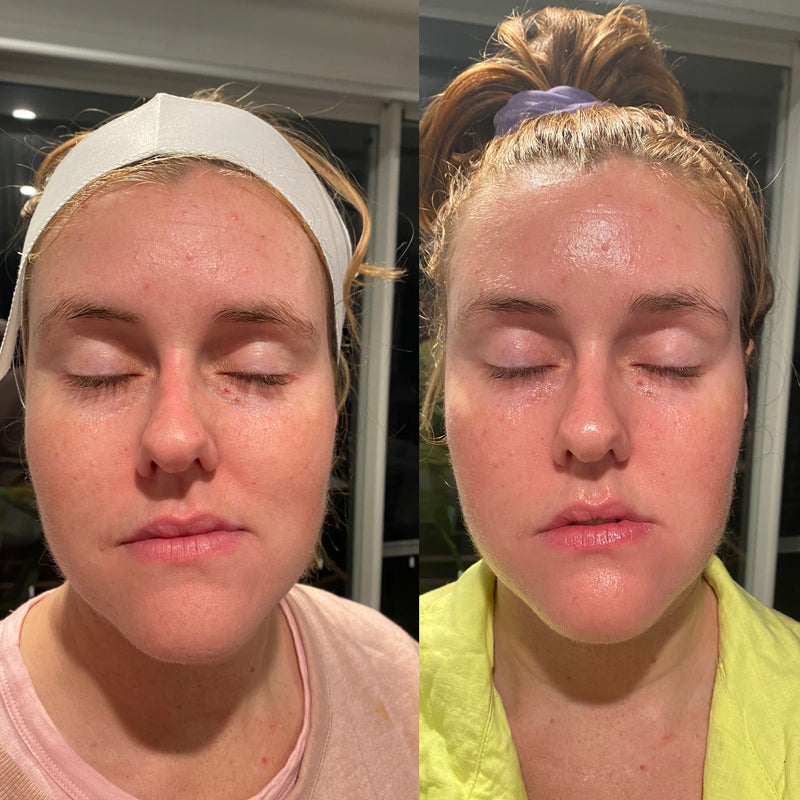 Brighten Express Facial