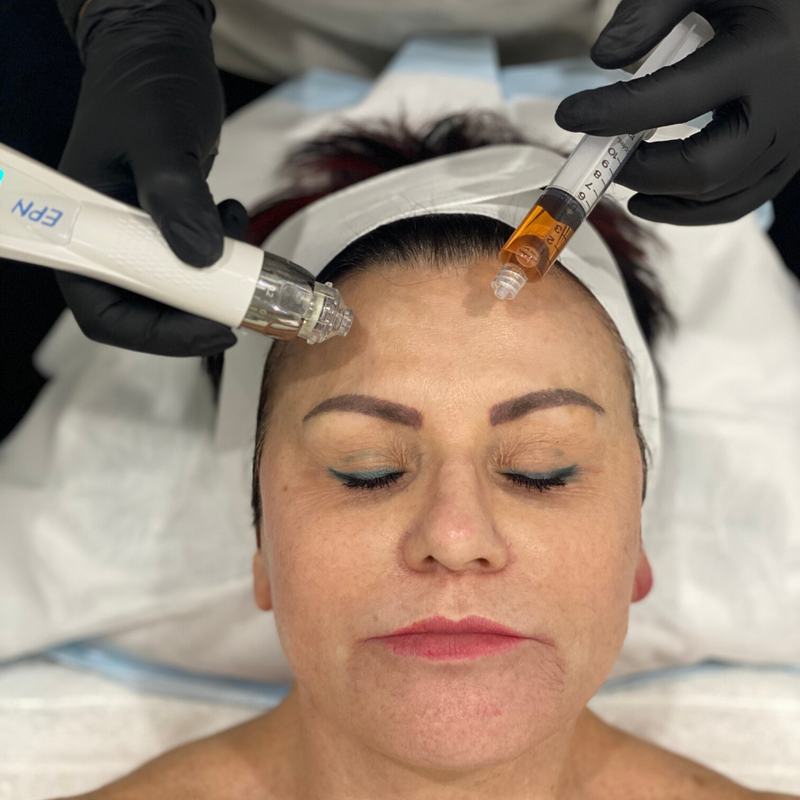 Ultra Lift skin infusion with electroporation