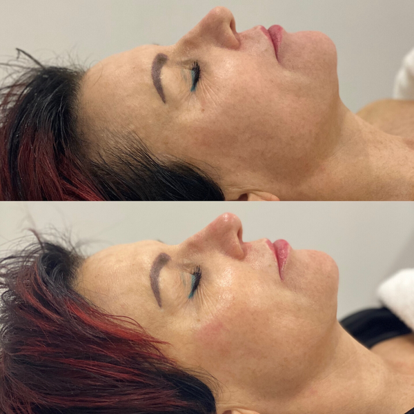 Before and After Revitalise Skin Infusion