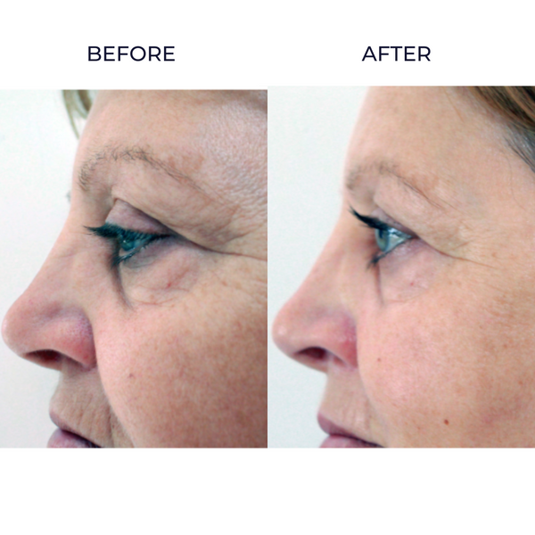 Before and After Ultra Lift skin infusion