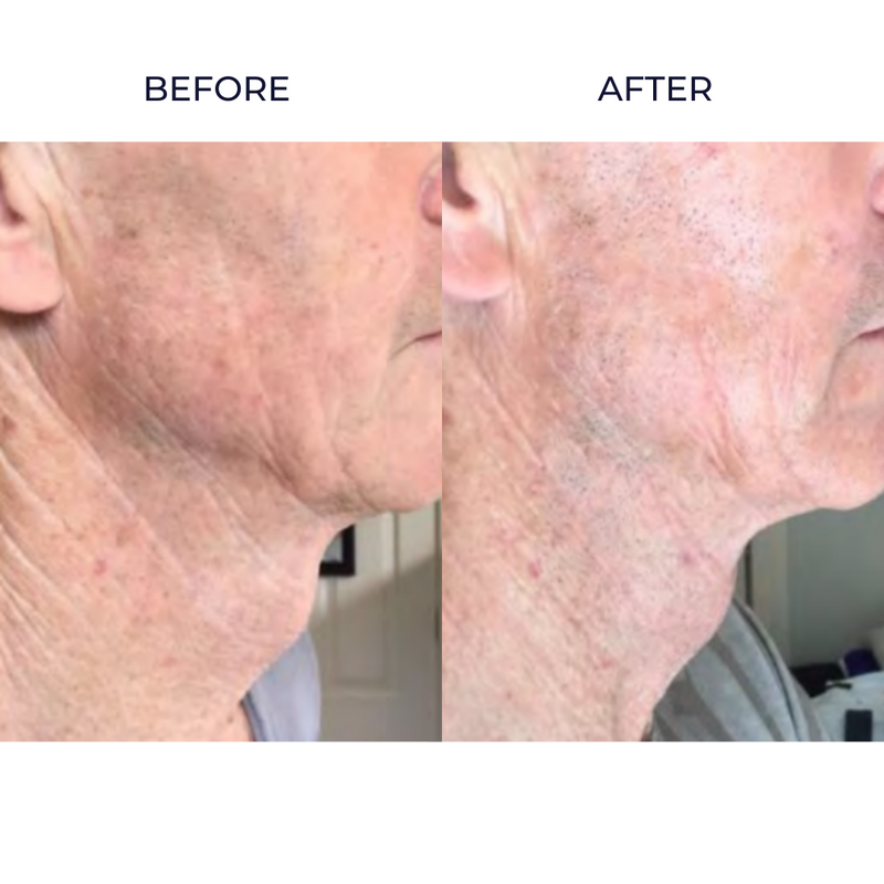 Ultra Lift skin infusion before and after