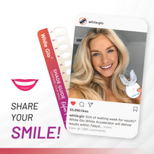 Load image into Gallery viewer, Accelerator Teeth Whitening Kit