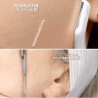 Professional facial hair remover for home - goodbye dead skin smooth and glowing skin - EbazoneShop